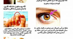 علامت هایی که نشان دهنده کمبود ویتامین در بدن شماست
