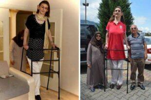 دختر اهل ترکیه بلندقدترین زن جهان شد